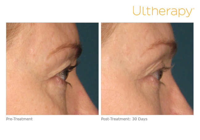 ultherapy-000k-004y_before-30daysafter_brow