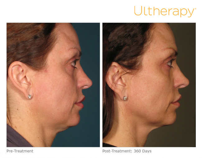 ultherapy-000p-015y_before-360daysafter_full1
