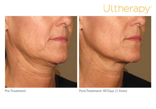 ultherapy15mm-0297j-k_before-90daysafter_lower2_low-res