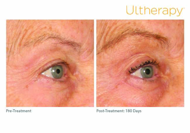 ultherapy_0197c-d_beforeandafter_brow1_low-res