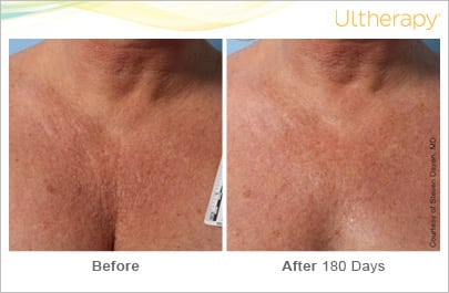 ultherapy_031lmm_beforeandafter-180day_1tx_chest
