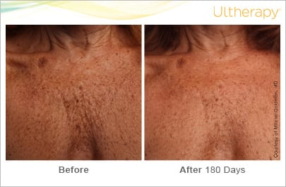 Ultherapy Before and After Photos Atlanta
