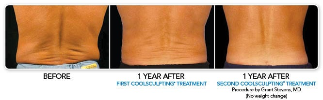CoolSculpting Before and After Photos Atlanta
