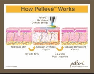how pelleve works