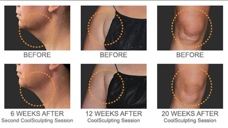 Before and After CoolSculpting Session
