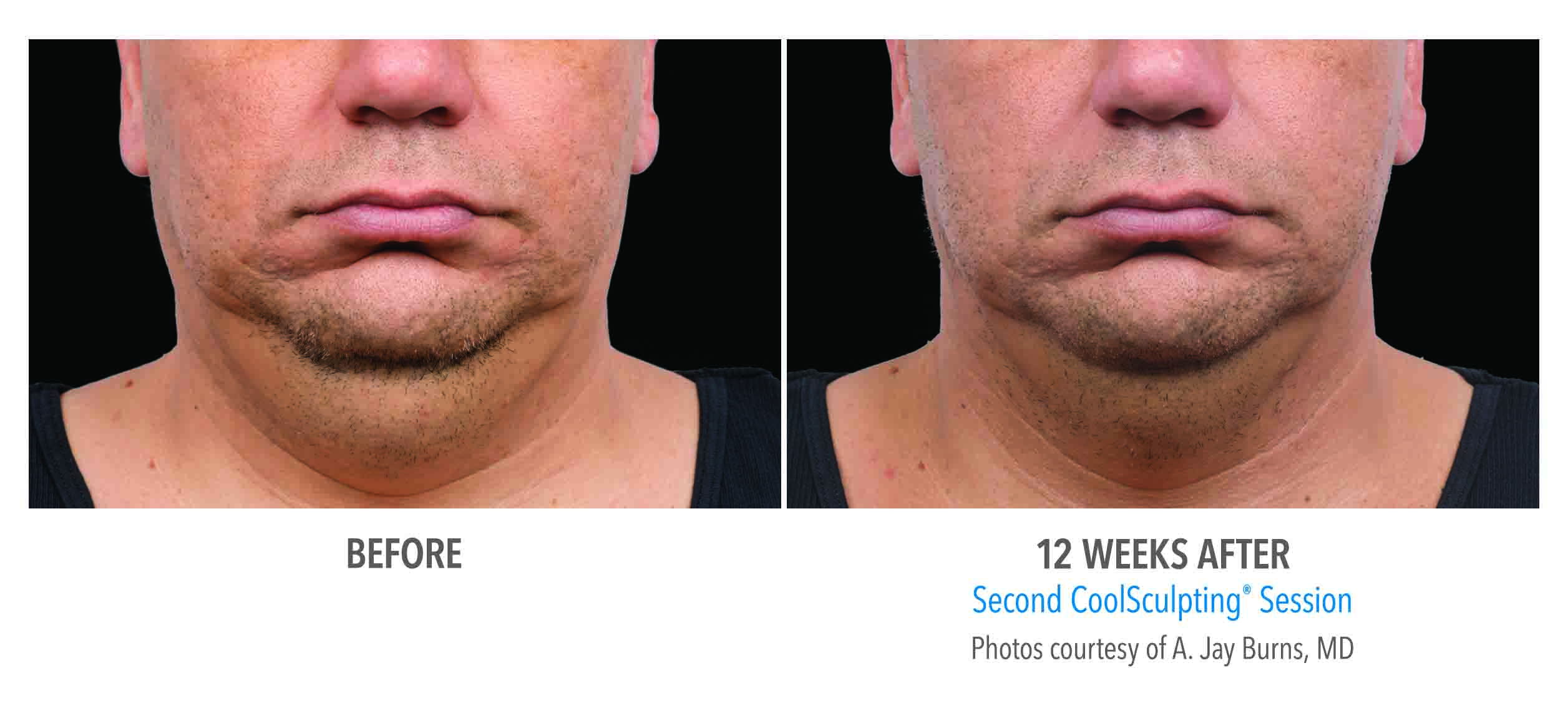 CoolSculpting Chin Before After Result of Men