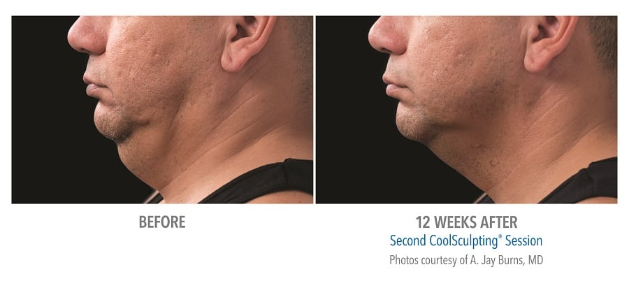 Coolsculpting Chin Treatment For Chiseled Jawline
