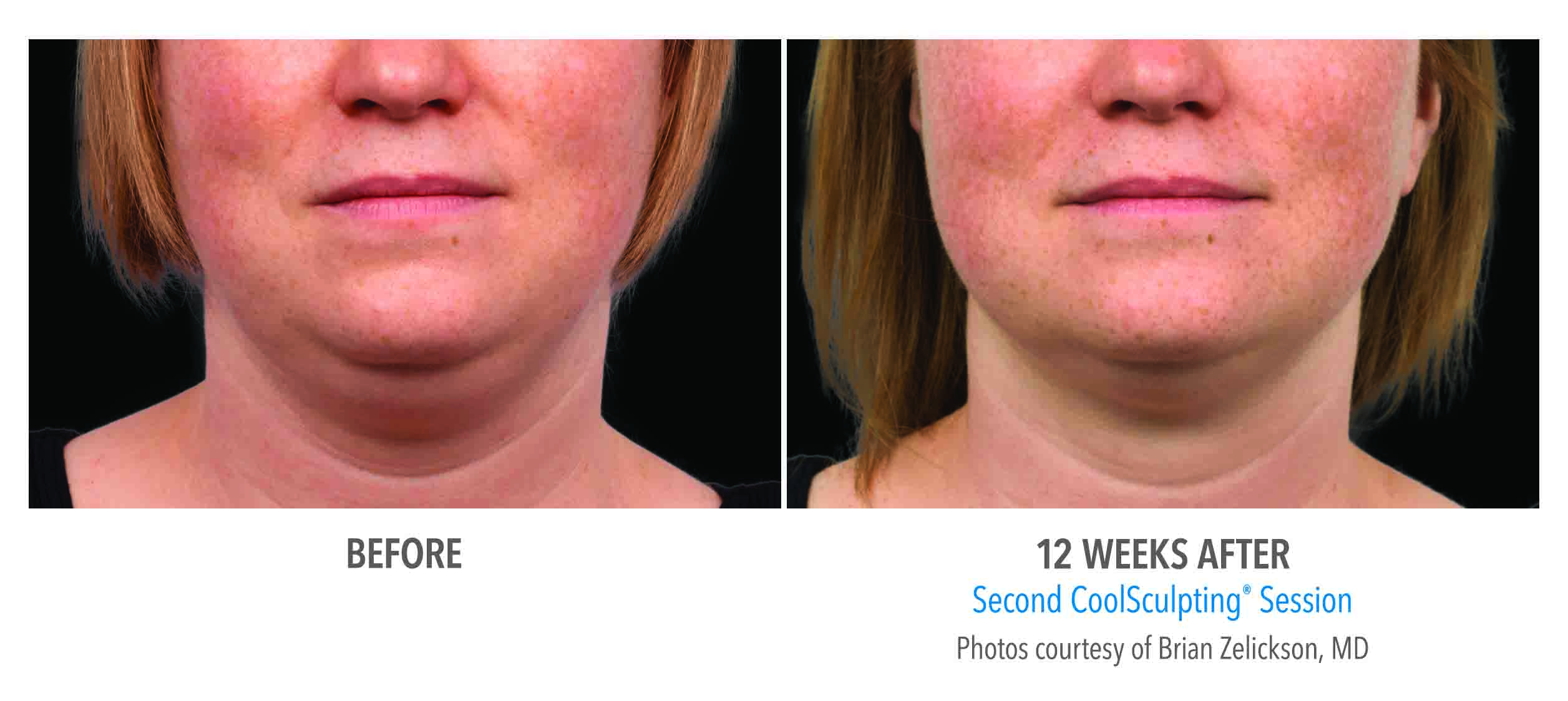 Coolsculpting double chin results