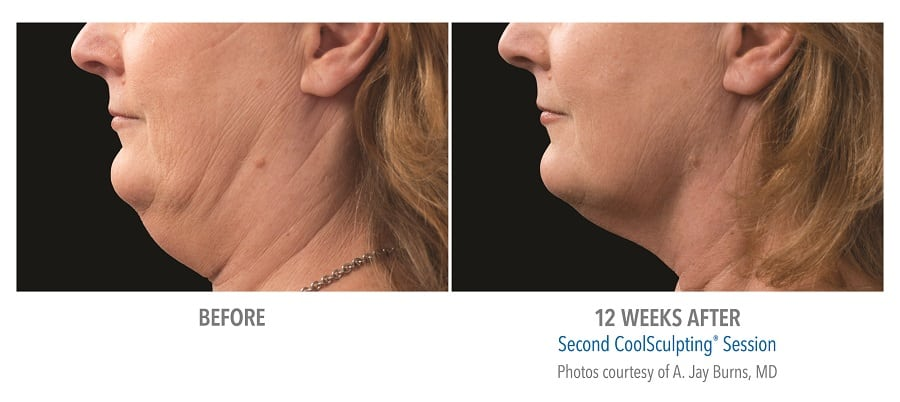 CoolSculpting Chin Before After Result of Female