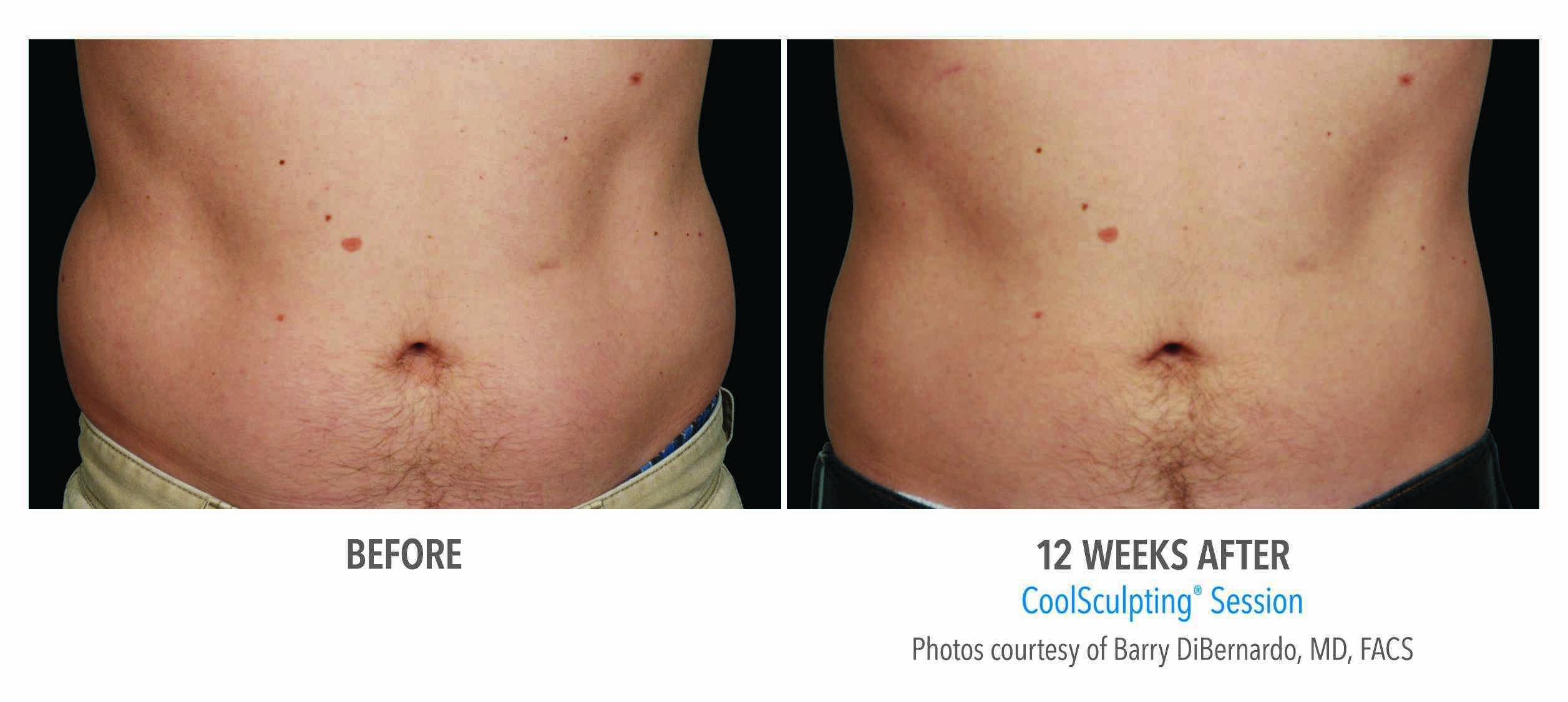 Coolsculpting Results In Atlanta Ga Sculpted Contours