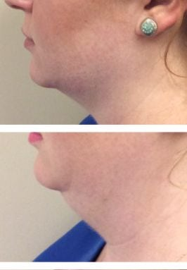CoolSculpting Double Chin at Sculpted Contours