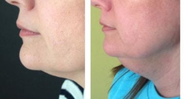 Effect of Liposuction Surgery of Double Chin