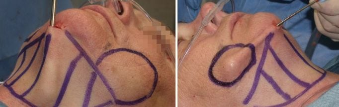 Liposuction surgery on double chin