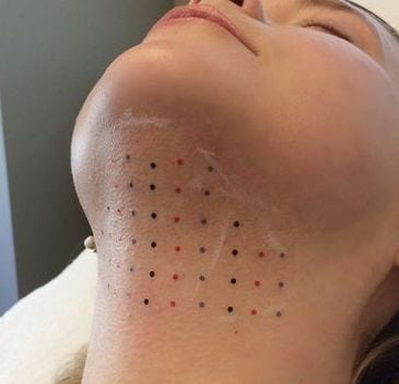 CoolSculpting Chin - Sculpted Contours