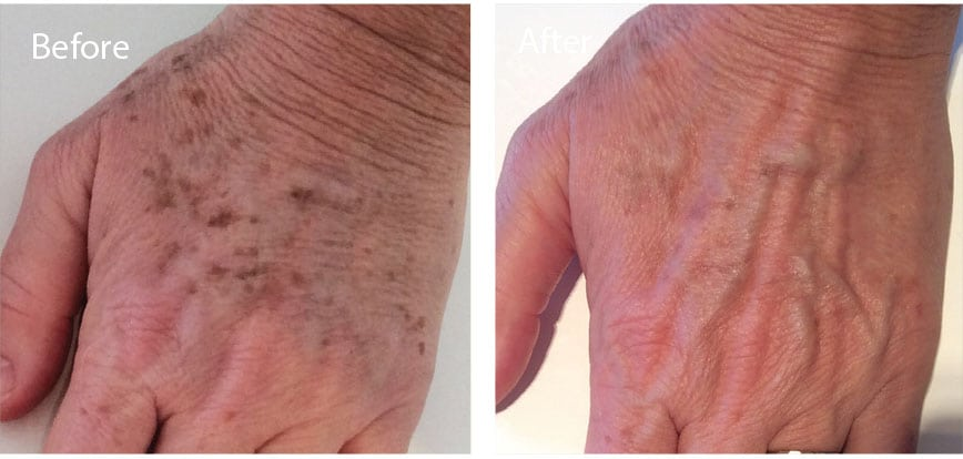 Restore your hands by clearing away brown age spots.