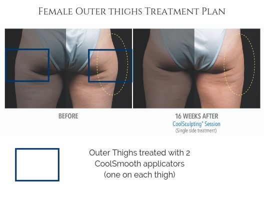 Outer Thighs Treatment Plan