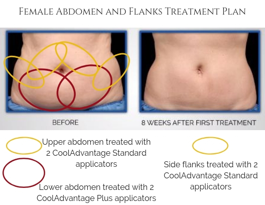 Female Abdomen and Flanks Treatment Plan