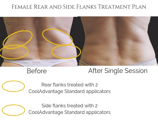 Female Rear and Side Flanks Treatment Plan