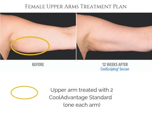 Upper Arm Treatment Plan