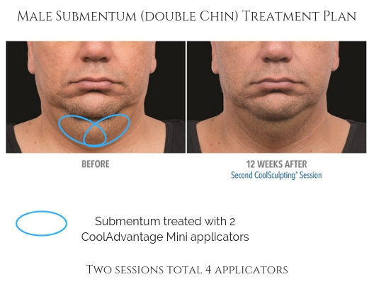 Submentum (Double Chin) Treatment Plan
