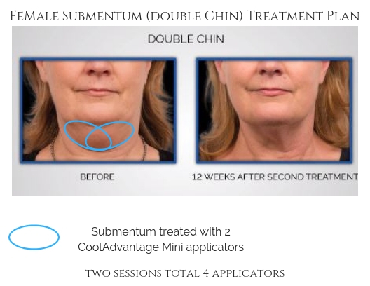Female Submentum Double Chin Treatment Plan