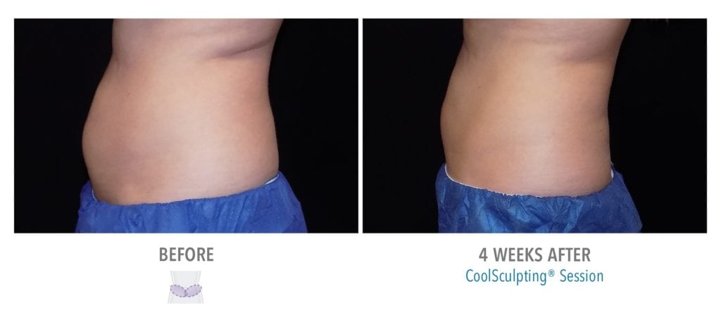 Abdomen CoolSculpting Result – Before and After
