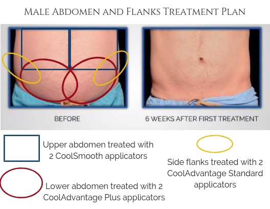 Male Abdomen and Flank Treatment Plan