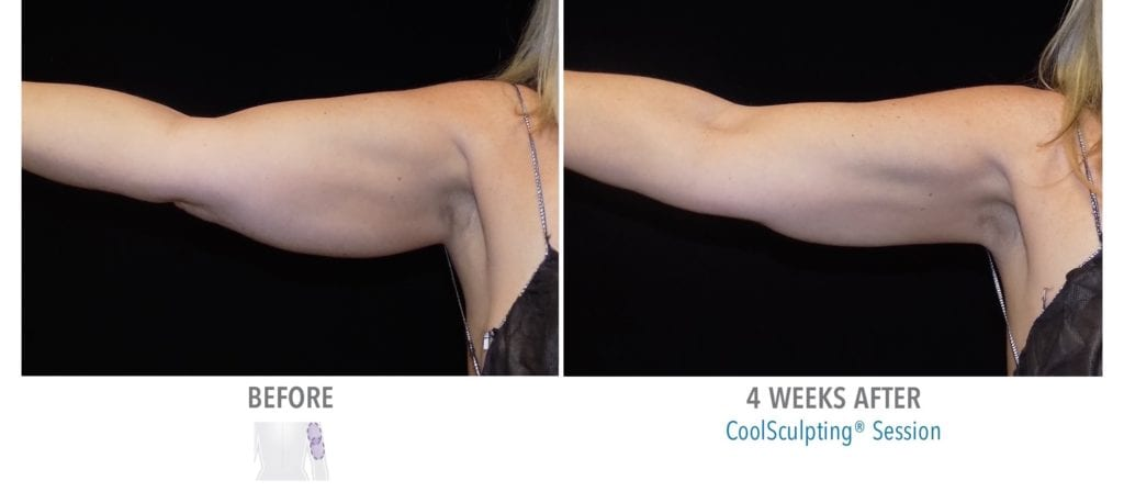 CoolSculpting Arms Results