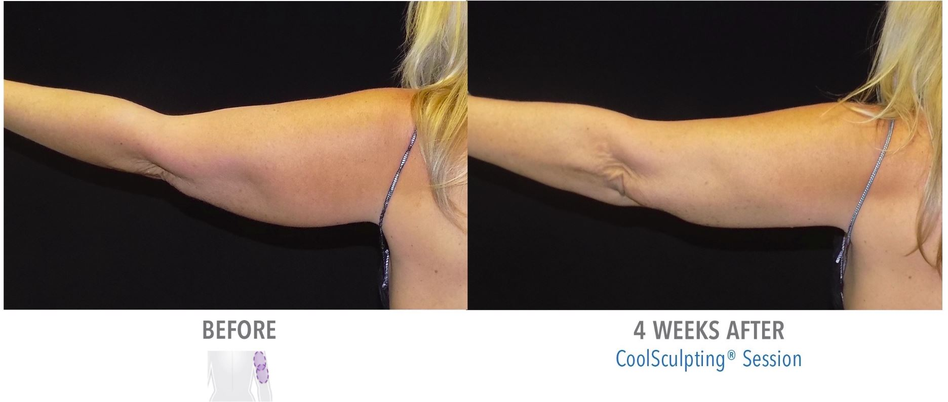 CoolSculpting Arms - Before and After Result