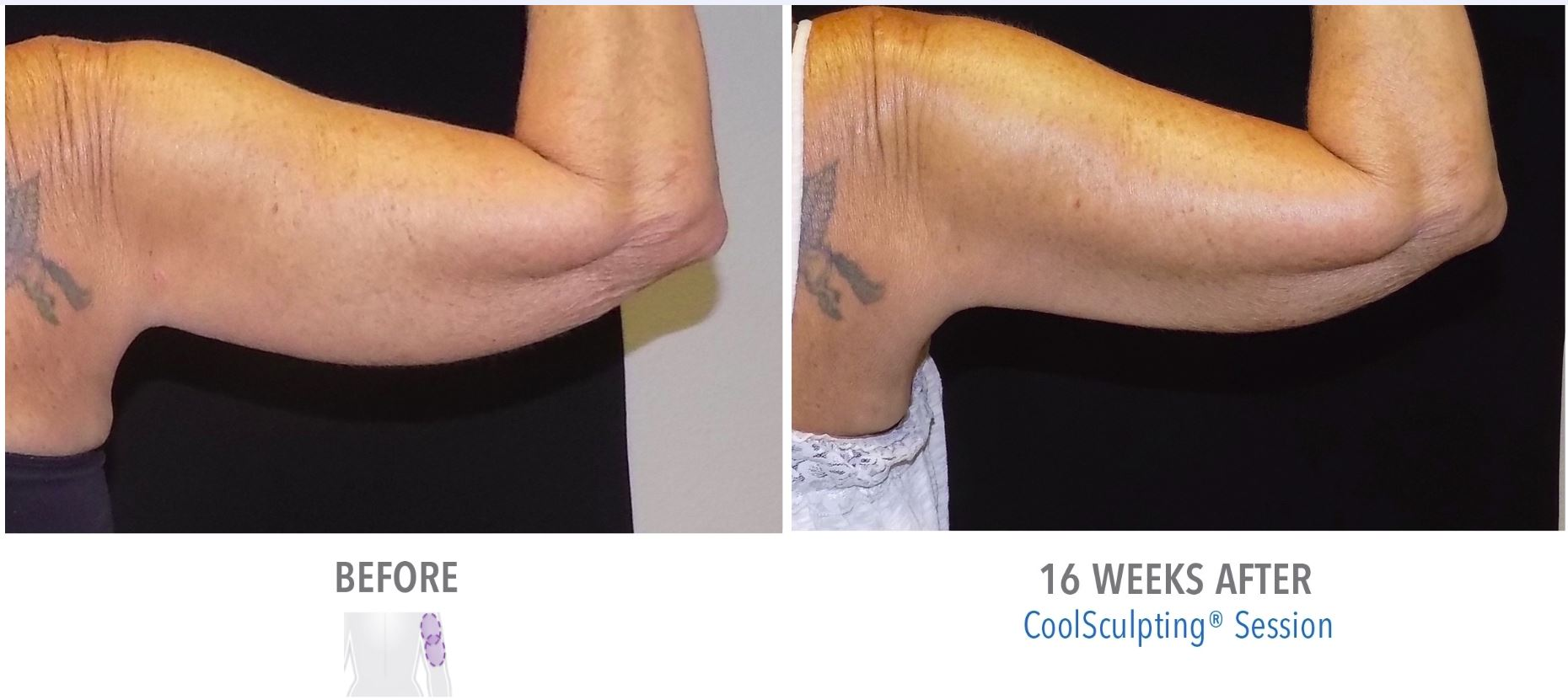 Before and After Result - CoolSculpting Arms