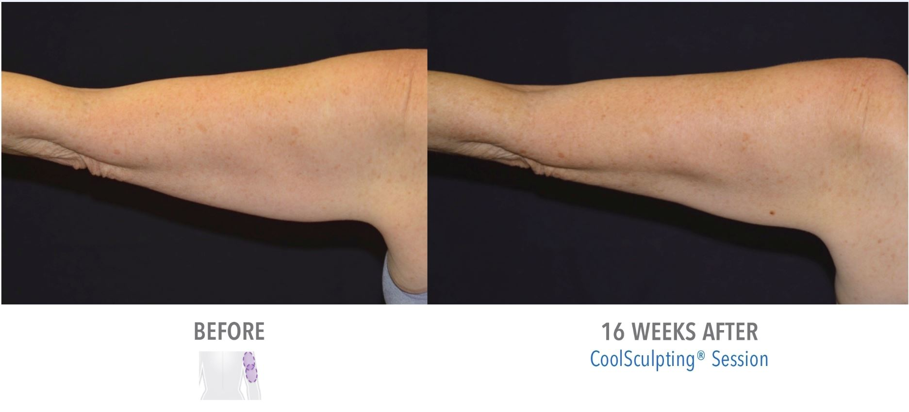 CoolSculpting Arms Before After Result