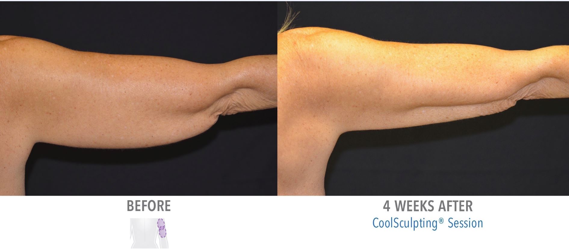 CoolSculpting Arms Before and After Result