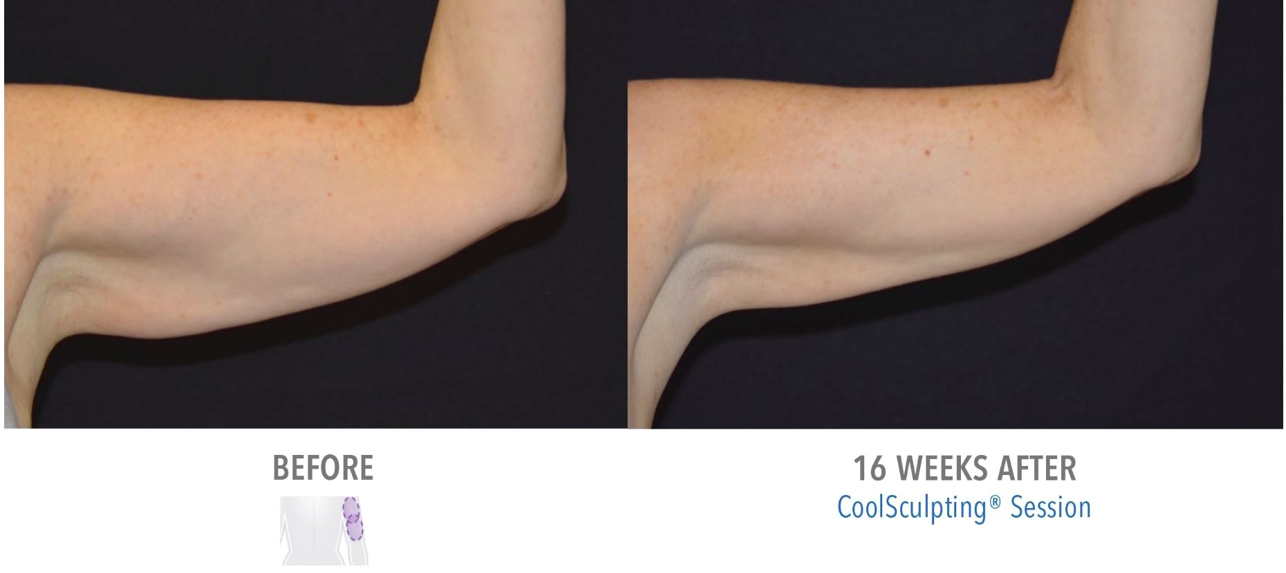 Coolsculpting Arms Before and After Result of Men