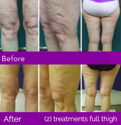 TruSculpt Treatment Results on Legs in Buckhead, Atlanta, GA