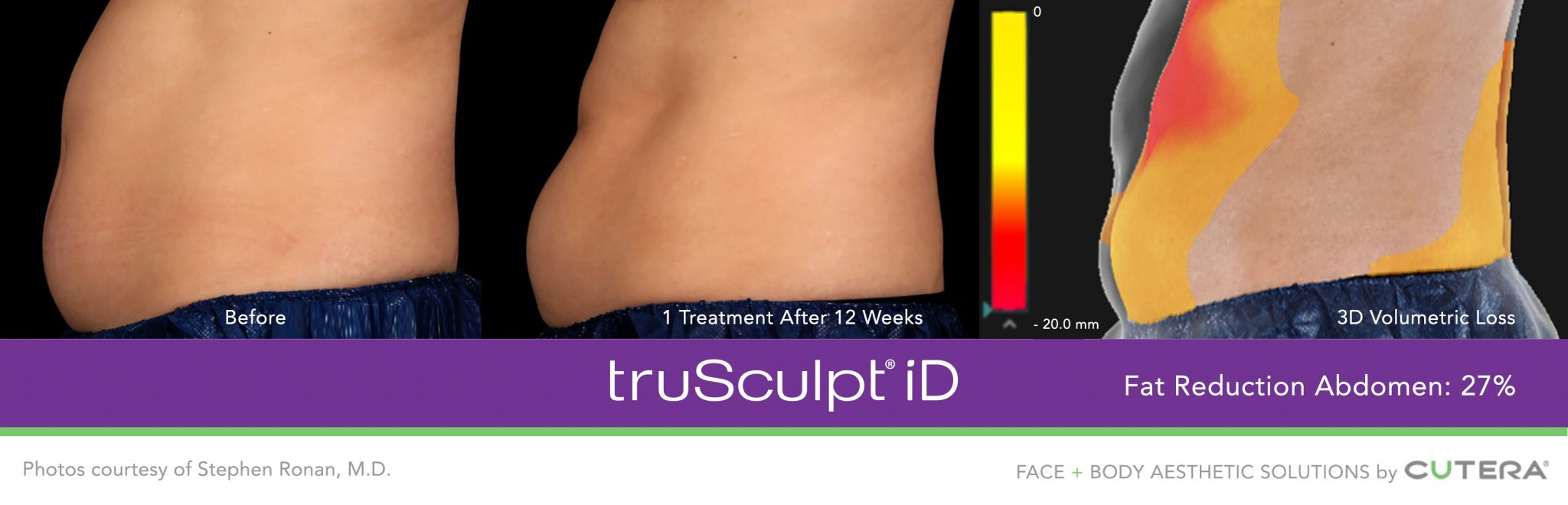 TruSculpt Treatment Results on Stomach in Buckhead, Atlanta, GA