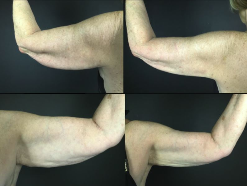 ARms before and after Fire and Ice