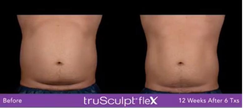 TruSculpt Flex Results Abdomen Male