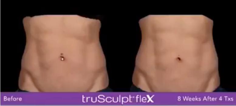 TruSculpt Flex Results Abdomen Woman