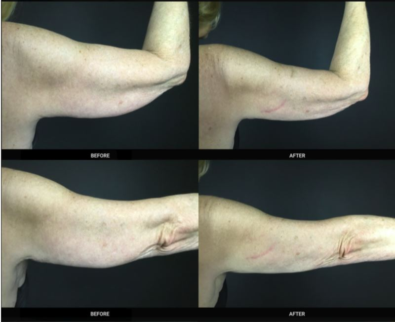 arms before and after fire and ice 3